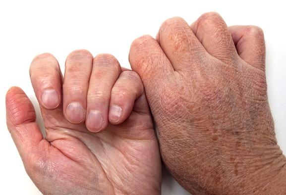 Germs last longer on damaged skin